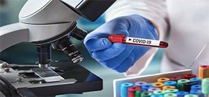 کیت تشخیص سریع آنتی ژن کووید۱۹با دقت ۸۵درصدی، رونمایی شد اداره کل تجهیزات پزشکی در وب سایت خود منتشر کرد.